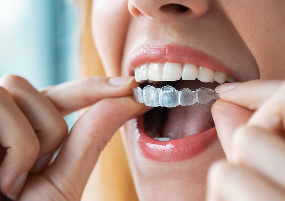 Enjoy invisible teeth straightening with Invisalign, available with St. Louis, MO area dentists