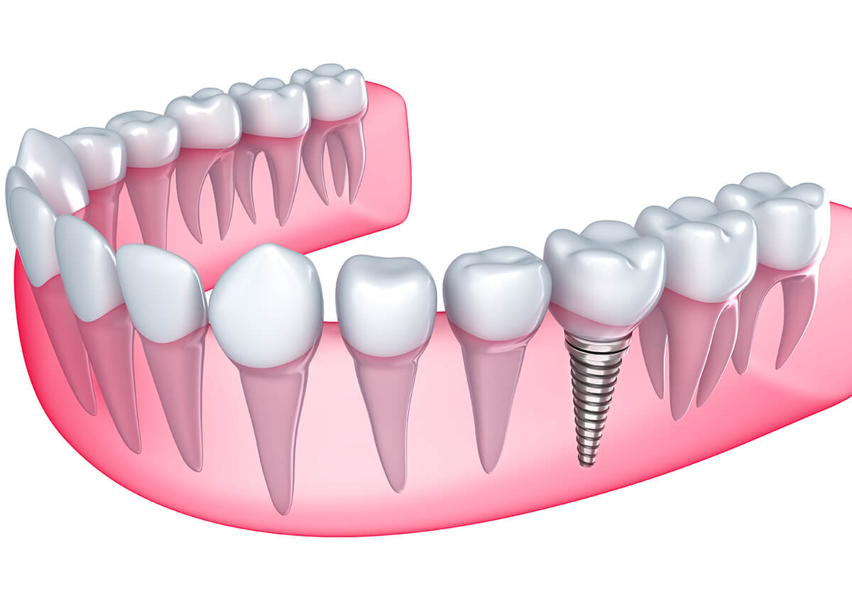 Dental Implants Restore Smiles and Protect Teeth in Ballwin, MO Area